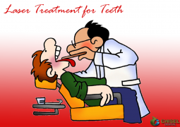 Benefits of Laser Treatment for Teeth