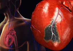 Prominent Heart Attack Symptoms That Must Not Be Ignored