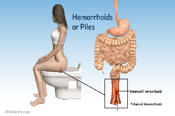 What are Heamorrhoids