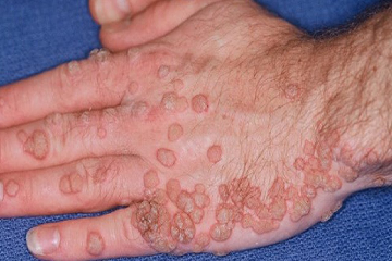 What are Human papilloma virus