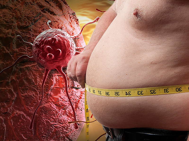 obesity and cancer; dr vikas goswami