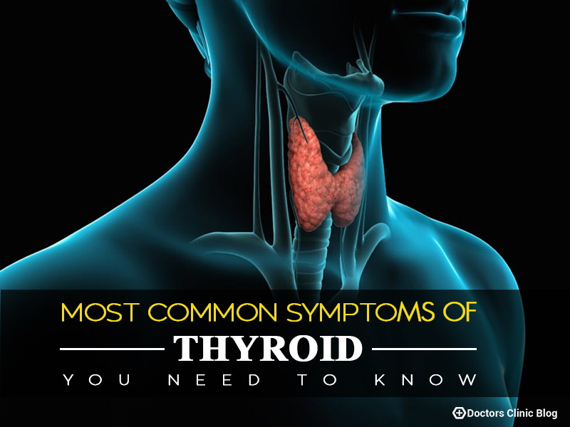 symptoms of Thyroid