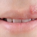What is Herpes Simplex