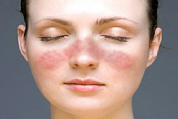 What is Systematic lupus erythematous