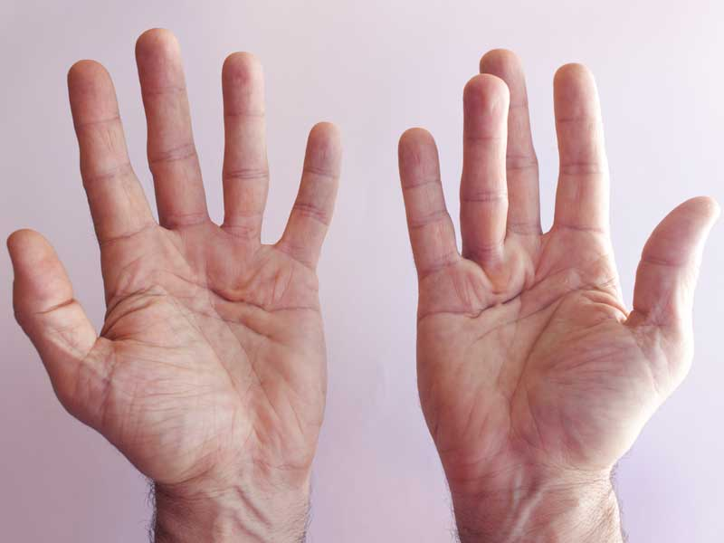 Diabetic hand syndrome