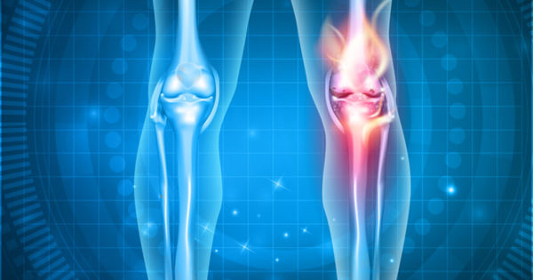bone problems associated with diabetes