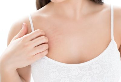 causes of itchy breasts